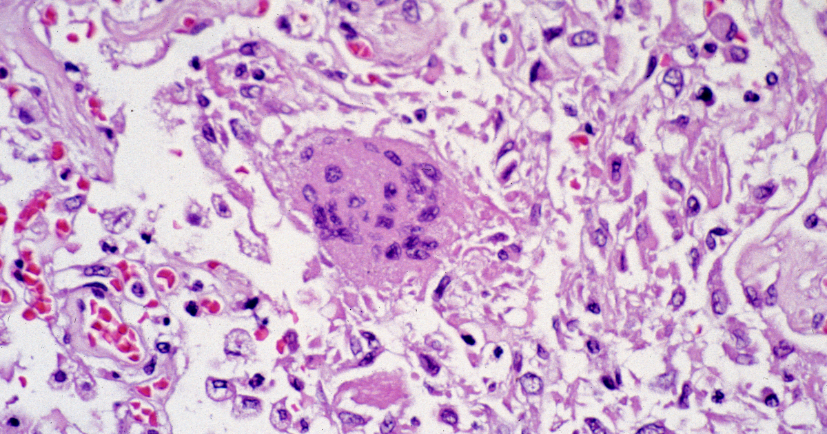 Specimen of lung tissue affected by SARS